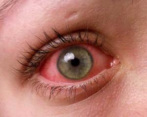 red eyes pink eyes