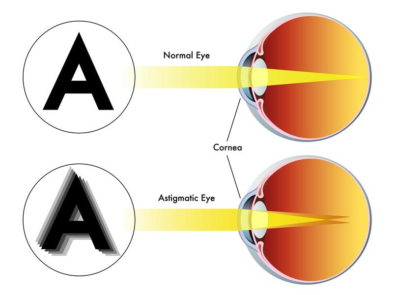 astigmatism - Bright Vision Optometry | Chino Hills, CA 91709 | Eye Doctors  | Optical