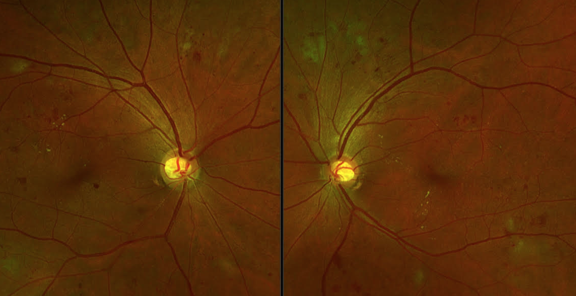 optos diabetic retinopathy
