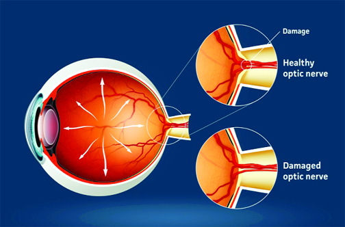 glaucoma picture